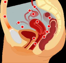 Localizzazione endometriosi